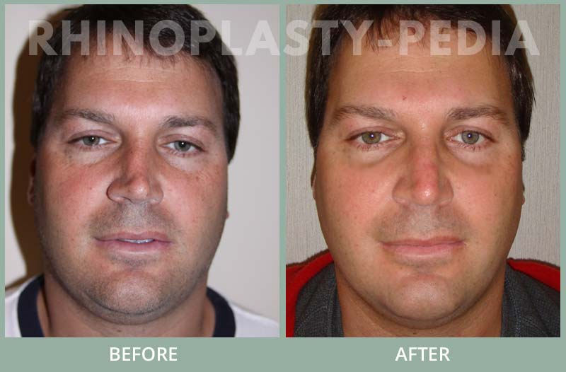 male rhinoplasty patient before and after photo 23