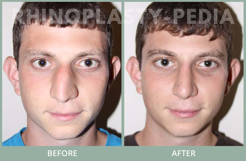 male rhinoplasty patient before and after photo 24