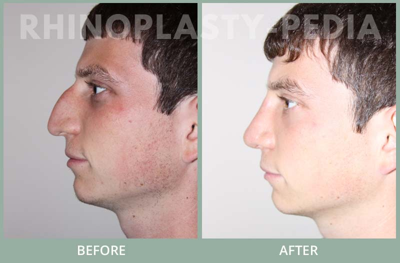 rhinoplasty male patient before and after photo set 55