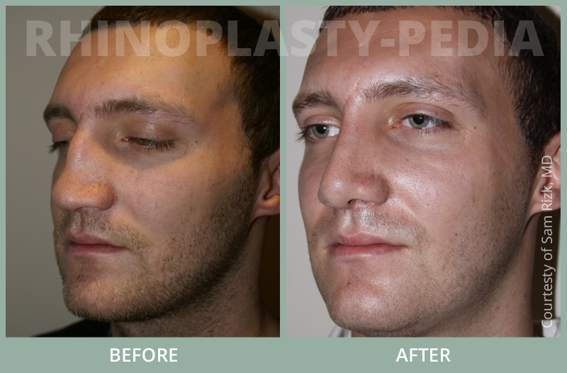 rhinoplasty surgery male patient before and after photo 1
