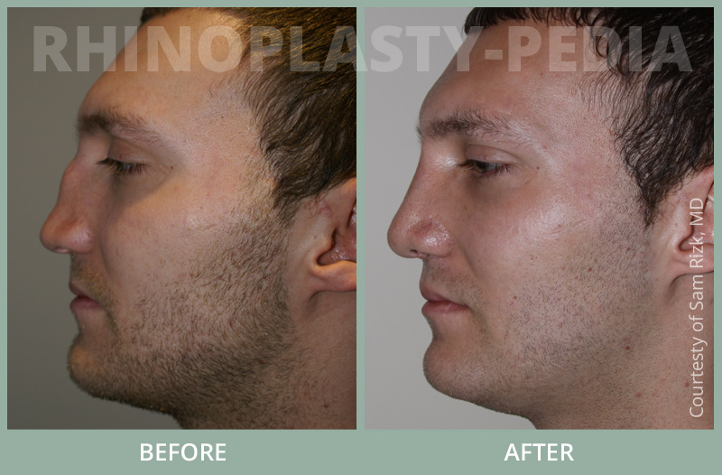 rhinoplasty surgery male patient before and after photo 3