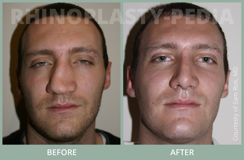 male rhinoplasty patient before and after photo 2