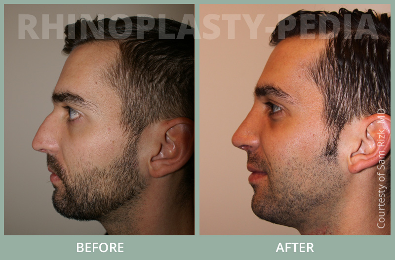 rhinoplasty male patient before and after photo set 29