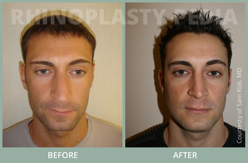 male rhinoplasty patient before and after photo 5