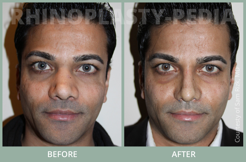 rhinoplasty male patient before and after photo set 8