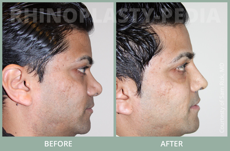 rhinoplasty male paient before and after photo set 9