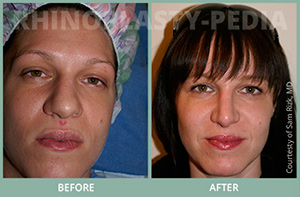 female rhinoplasty patient before and after photo 12