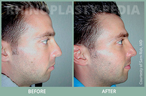 male rhinoplasty patient before and after photo 8 thumb