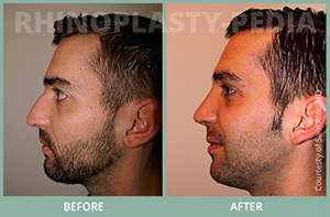 male rhinoplasty patient before and after photo 3