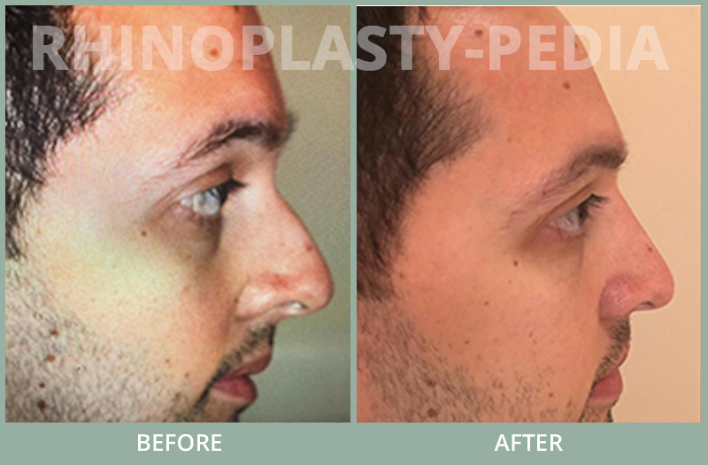 rhinoplasty female patient before and after photo set 64