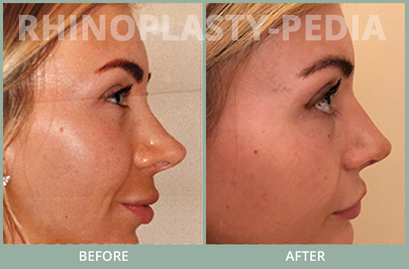 rhinoplasty female patient before and after photo set 79