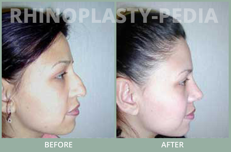 rhinoplasty female patient before and after photo set 69