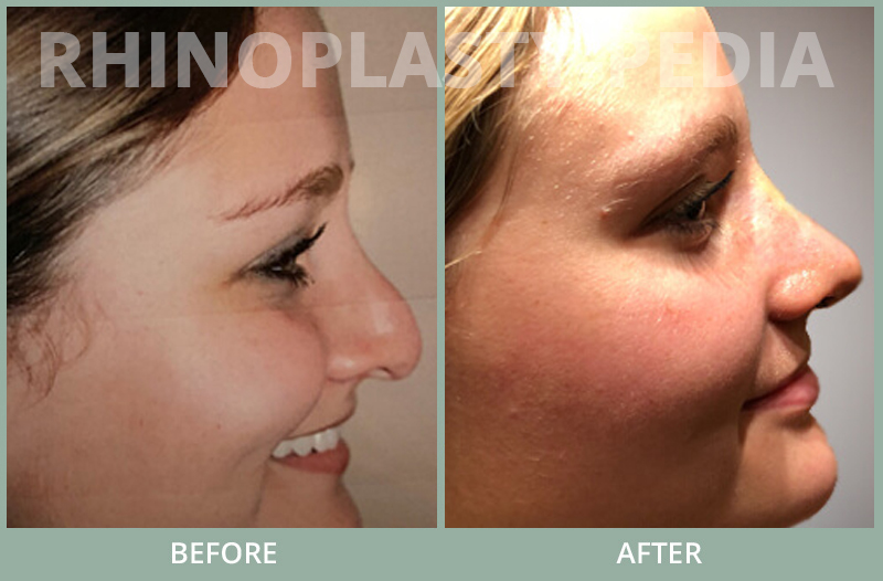 rhinoplasty female patient before and after photo set 78