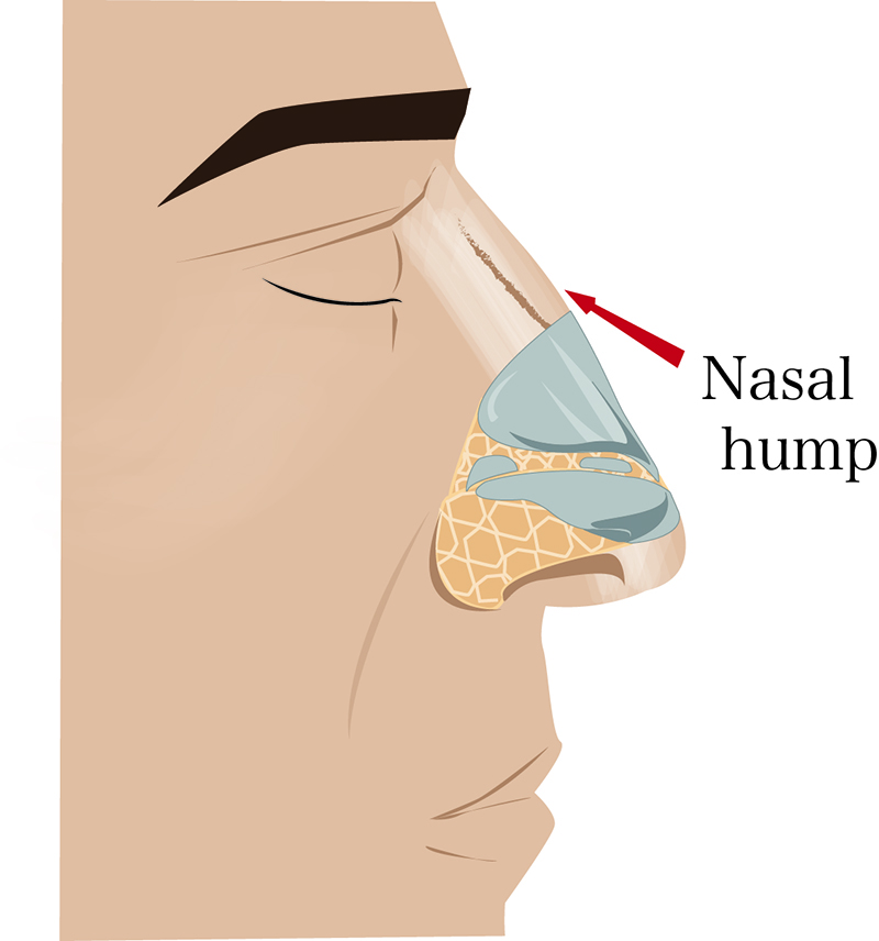 techniques in male rhinoplasty - nasal hump photo
