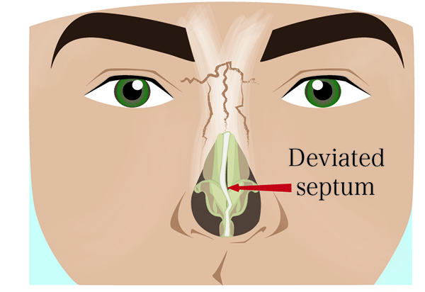 deviated septum photo