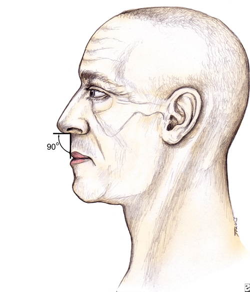 rhinoplasty for a drooping Nose - Nasolabial angle