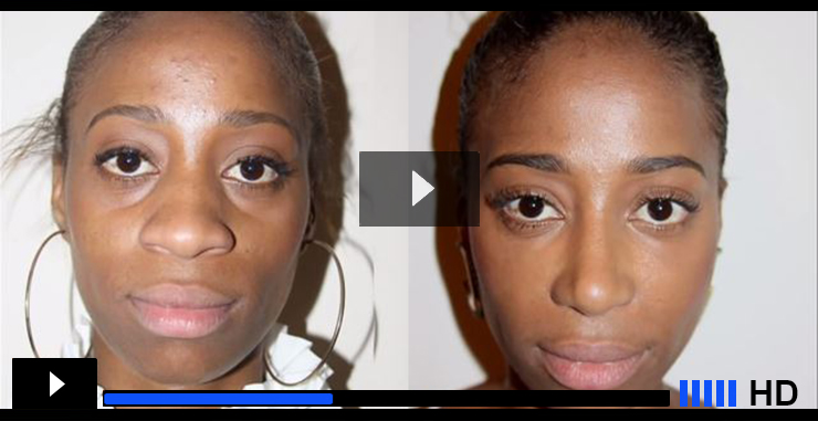 african american rhinoplasty video banner photo