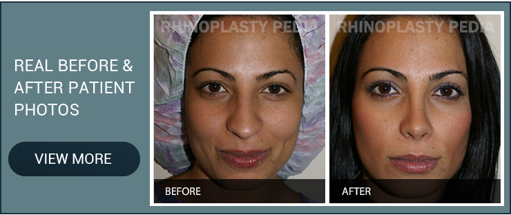 refining or reducing a nasal hump real before and after patient photo