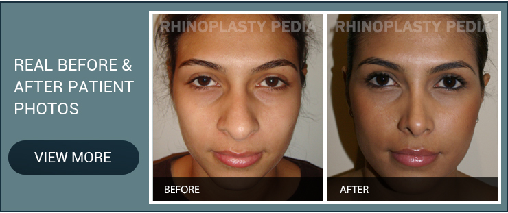 narrowing the nostrils real before and after patient photo