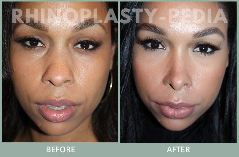 female rhinoplasty patient before and after photo 46