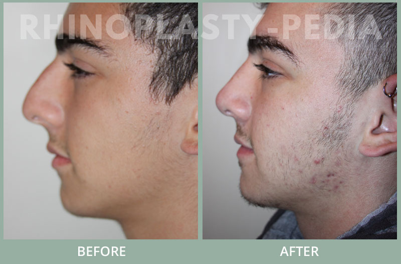 rhinoplasty male patient before and after photo set 24