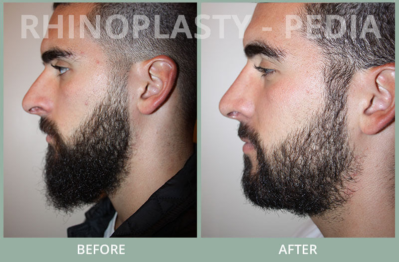 male rhinoplasty patient before and after photo 56