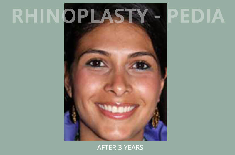 rhinoplasty female patient before and after photo set 20