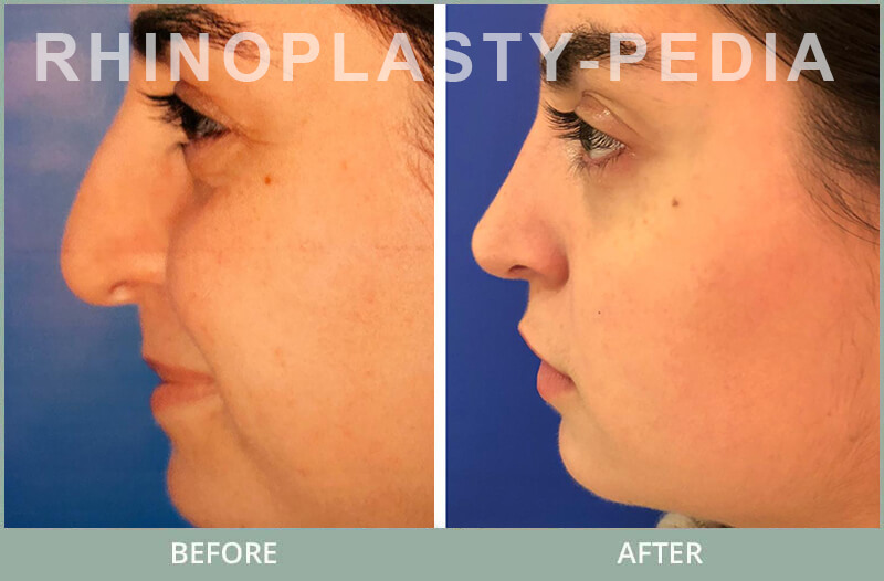 rhinoplasty female patient before and after photo set 112